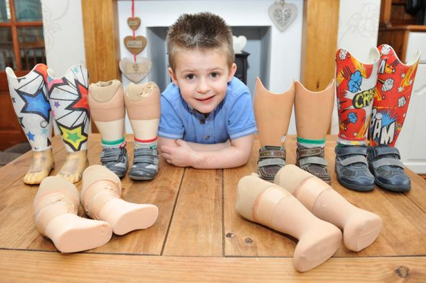 4YO BOY WITH NO LEGS IS FUNDRAISING TO PAY FOR NEW EXTENSION