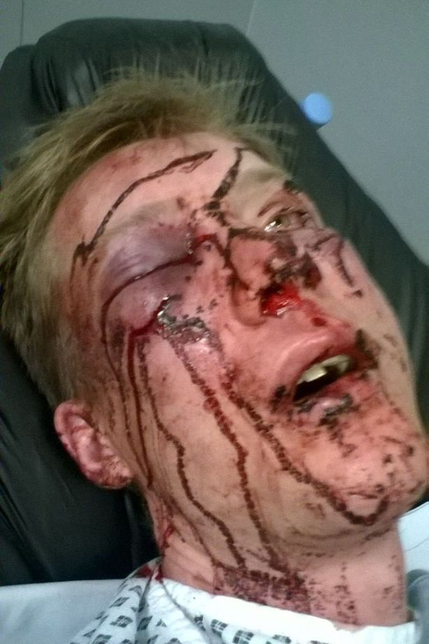 SHOCKING INJURY PICS AFTER MAN BRUTALLY BEAT WITH BASEBALL BAT