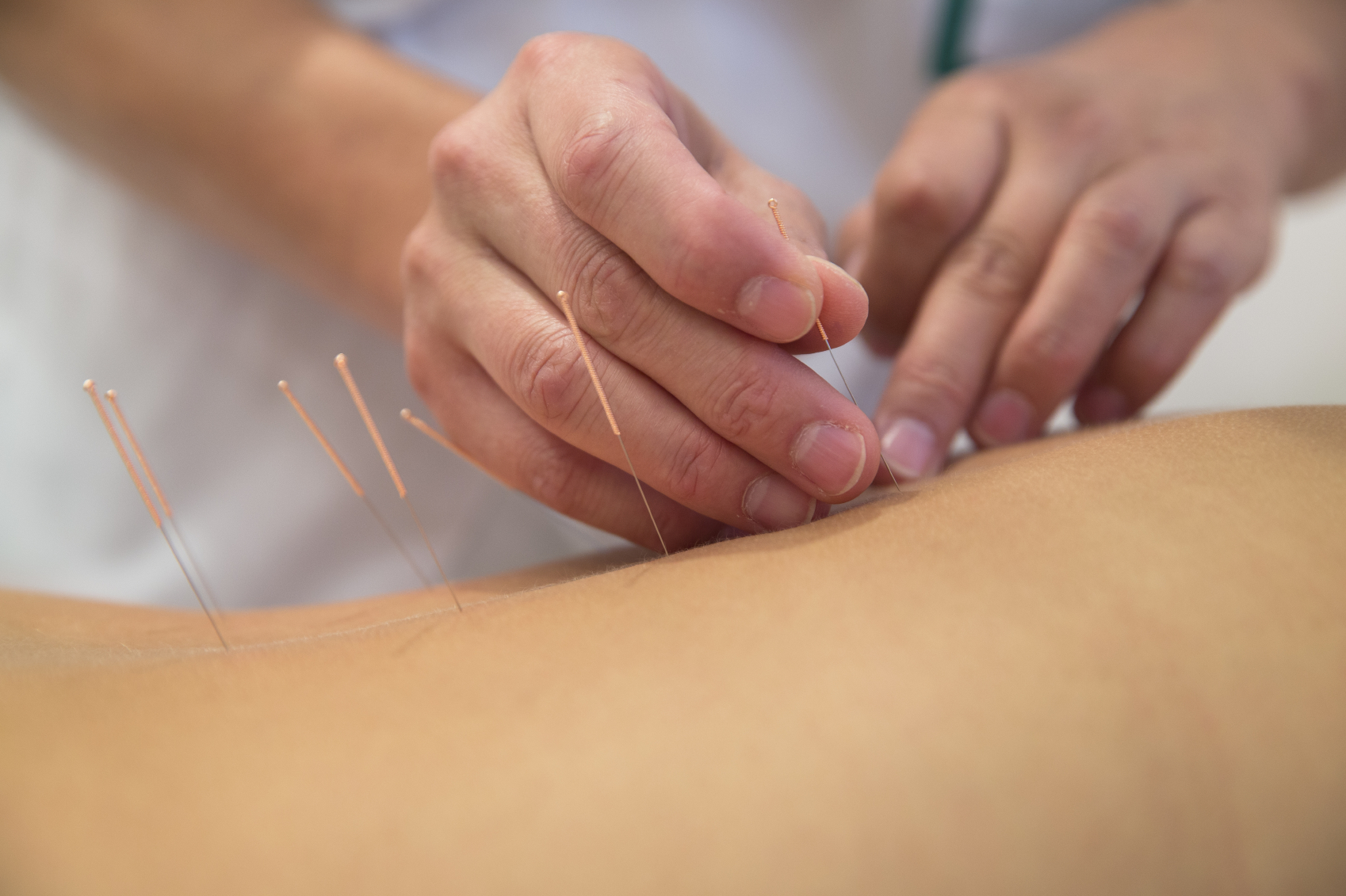 MUM SLAMS ACUPUNCTURE CLINIC AS CRUEL FOR OFFERING TO 'CURE' AUTISM