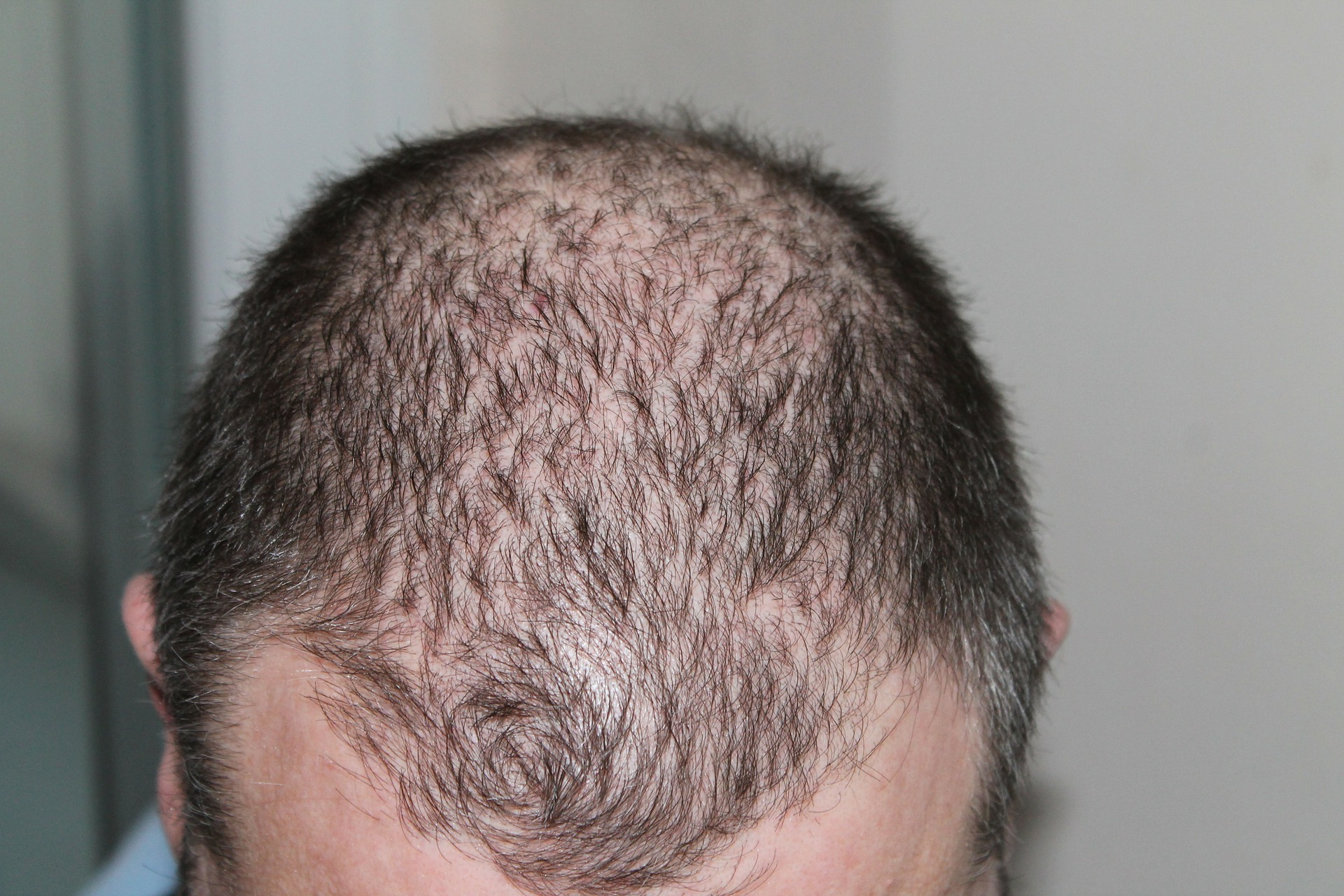 About Hair Transplantation in Turkey