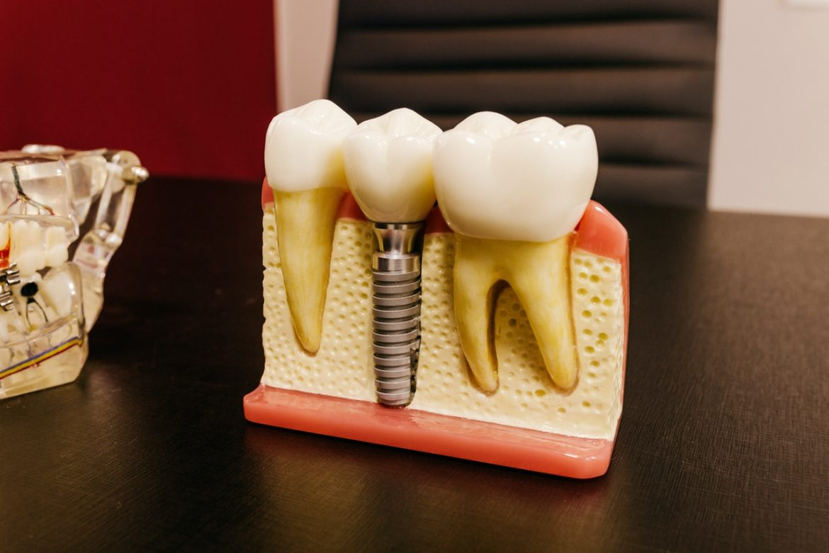 6 Key Factors to Consider if You Want to Get Dental Implants